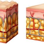 روشهای از بین بردن و پیشگیری از سلولیت